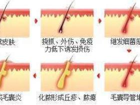 毛囊炎学习与治疗
